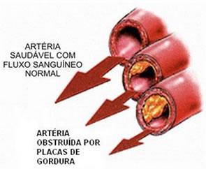 Aterosclerose1